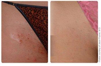 Вросшие волосы фото до и после лазерной эпиляции Sciton ClearScan